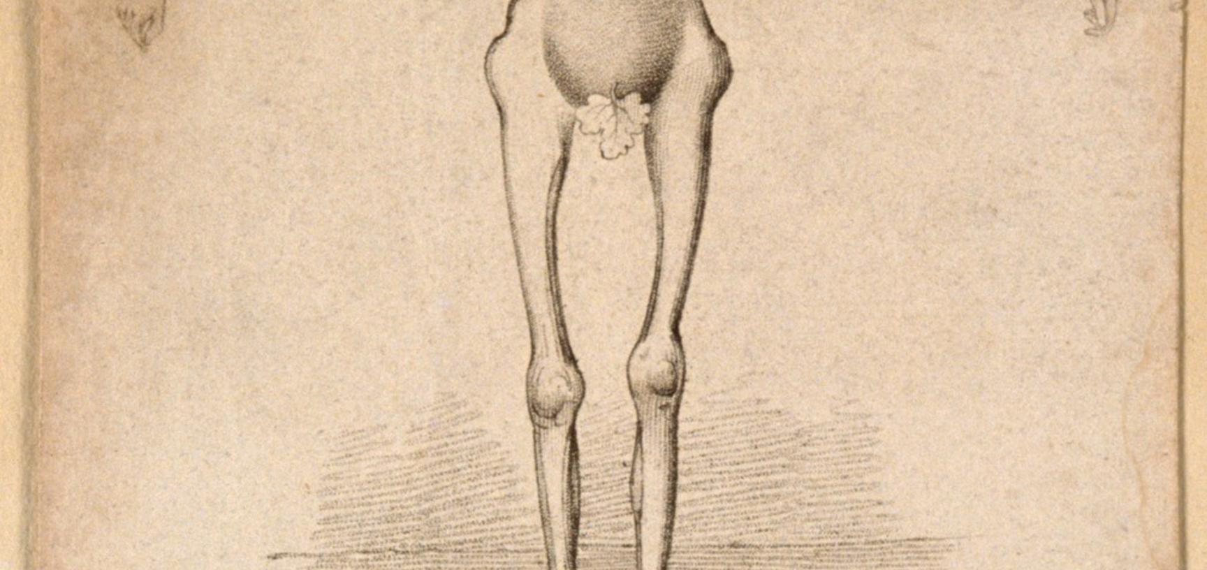 Claude Ambroise Seurat, known as the 'Human skeleton'.