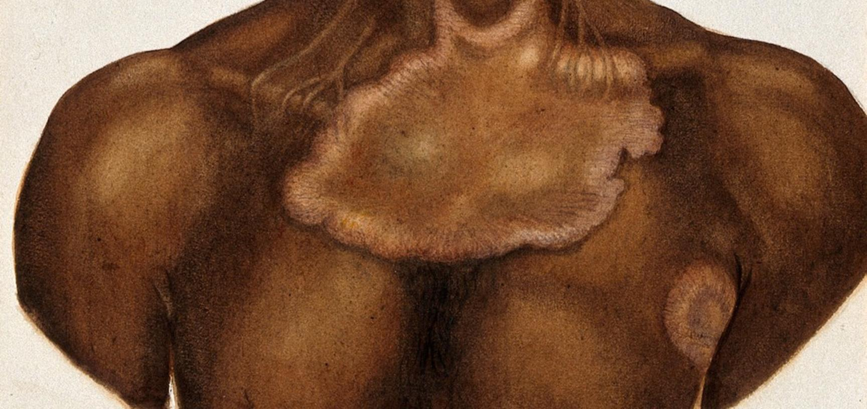 Leprosy of the chest on an Indian man. Watercolour (by Jane Jackson ?), 1921/1950 (?), after a (painting ?) by Ernest Muir, ca. 1921.